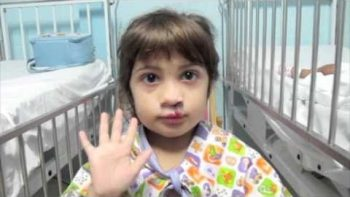 Brazilian Girl With Clef Lip Gets Free Corrective Plastic Surgery