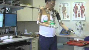 Amazing New Bionic Arm